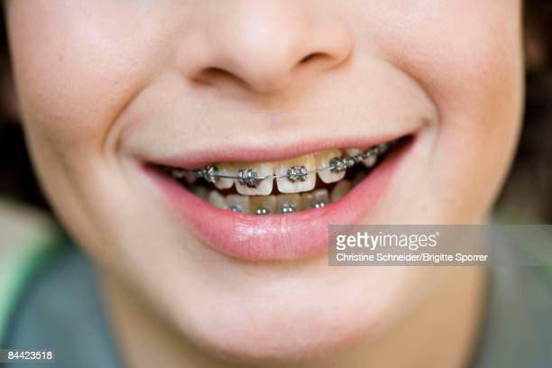 close up mouth with brace - brace stock pictures, royalty-free photos & images
