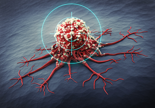 Close up of a cancer cell - 3d illustration 1168199832