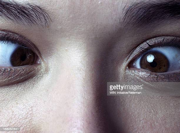 Close up of a cross-eyed woman