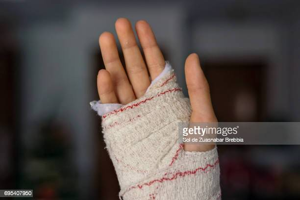 Close up of a hand with a bandage