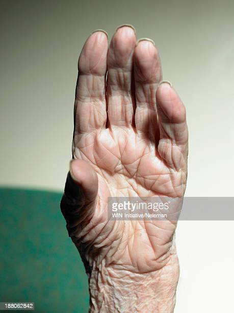 Close up of a senior woman's wrinkled hand