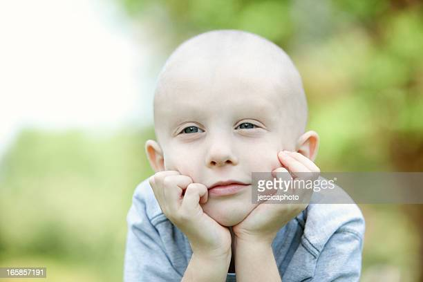 A close up of a young cancer patient daydreaming outside
