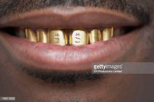 close up of african man with gold teeth - bling bling stock pictures, royalty-free photos & images