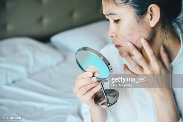 close up of asian woman worry about her face when she saw the problem of acne and scar by the mini mirror. - pimple stock pictures, royalty-free photos & images
