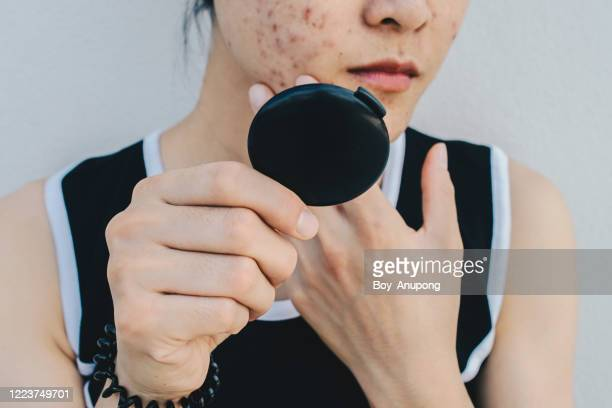 close up of asian woman worry about her face when she saw the problem of acne and scar by the mini mirror. - acne stock pictures, royalty-free photos & images