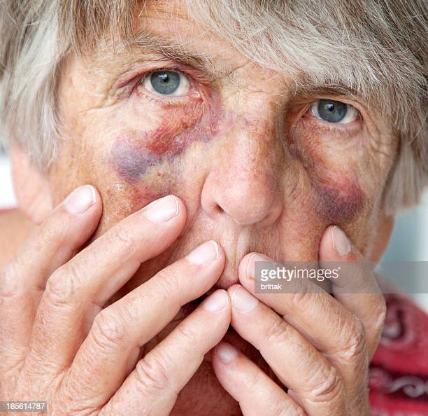 close up of battered senior woman with bruises - bruise stock pictures, royalty-free photos & images