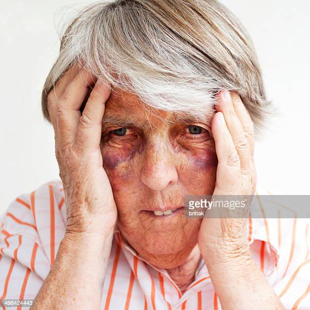 close up of battered senior woman with bruises - beaten up face stock photos and pictures