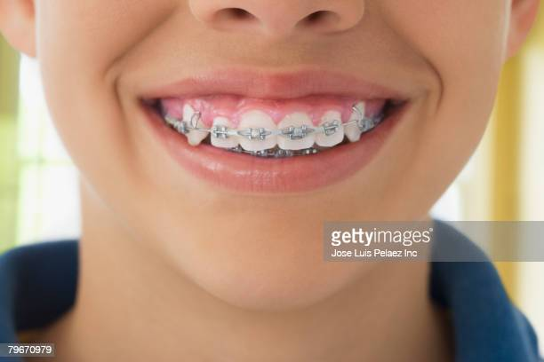 Close up of braces Hispanic boy's teeth