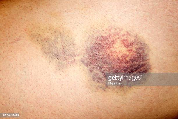 close up of bruised skin on human leg - bruise stock pictures, royalty-free photos & images