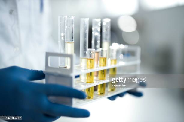 close up of cbd oil in test tubes at laboratory. - cbd oil stock pictures, royalty-free photos & images