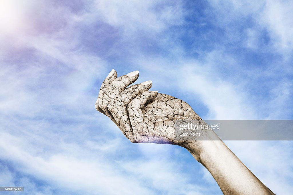 Close up of cracked, dry hand : Stock Photo