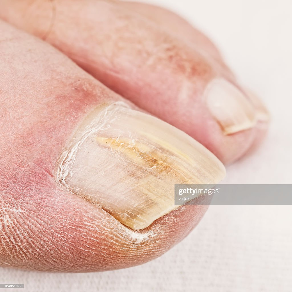 Close up of dry toe with yellowed nail fungus : Stock Photo