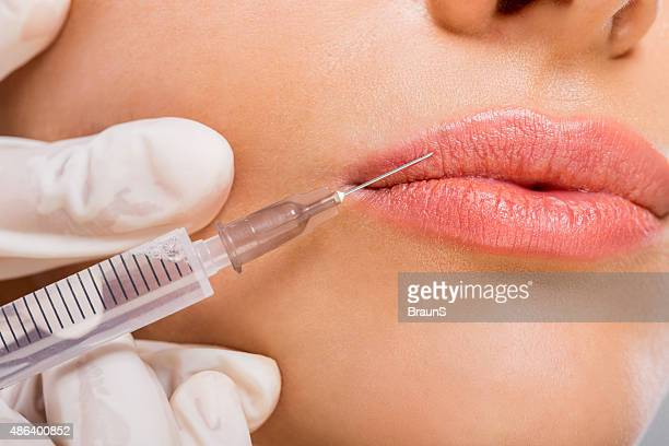Close up of having beauty treatment with Botox.
