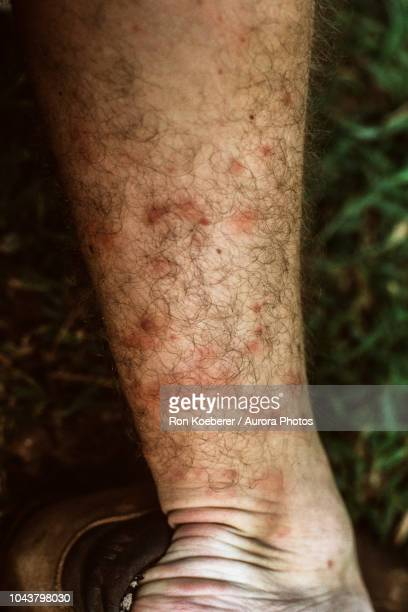 close up of insect bites on leg of man - koeberer stock photos and pictures