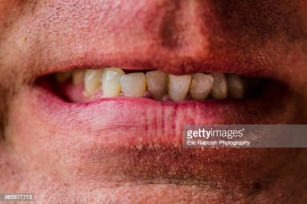 close up of lips of caucasian man grimacing - bad teeth stock photos and pictures