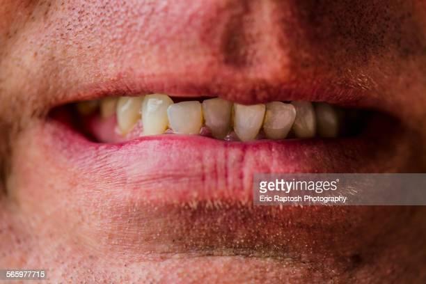 Close up of lips of Caucasian man grimacing