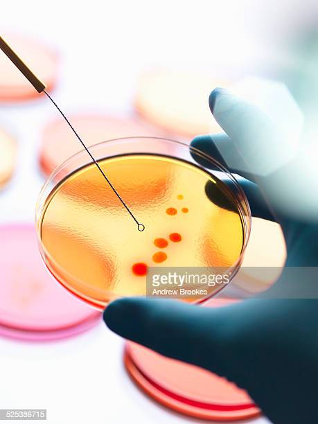 Close up of male scientist hand inoculating a series of agar plates with bacteria in microbiology lab