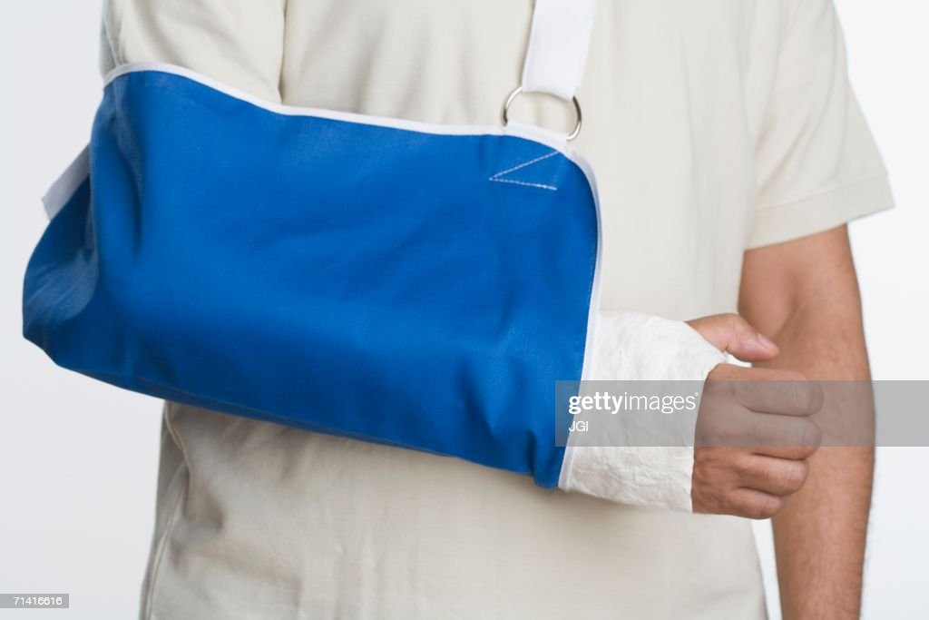 Close up of man's arm in sling : Stock Photo