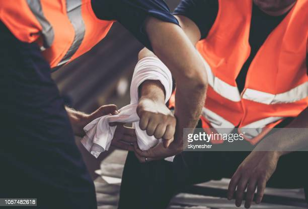 close up of physical injury at work. - injured stock pictures, royalty-free photos & images