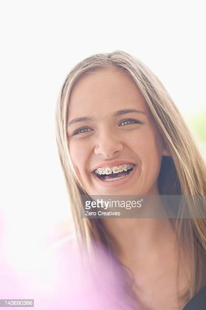 close up of teenage girl in braces - beautiful girl smile braces vertical stock photos and pictures