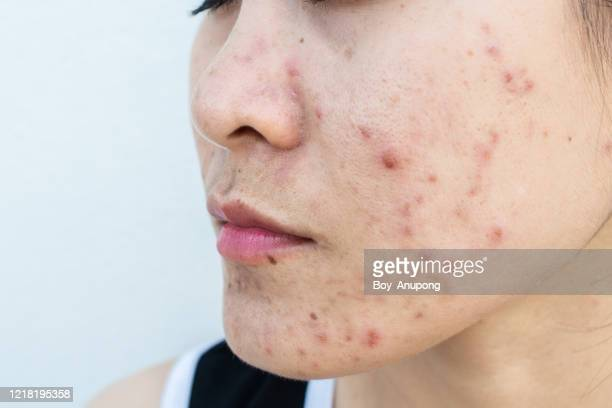 close up of woman face has variety problems on her skin (such as acne, pimple, pores and melasma etc). - ugly face stock pictures, royalty-free photos & images