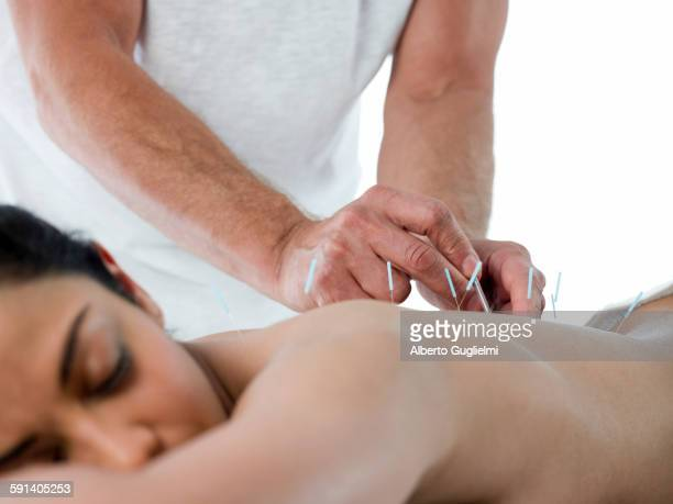 Close up of woman having acupuncture treatment