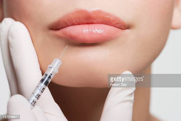 close up of woman receiving botox injection in lips - spuiten activiteit stockfoto's en -beelden