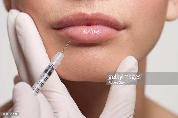close up of woman receiving botox injection in lips - botox stock pictures, royalty-free photos & images
