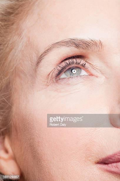 クローズアップ女性の目の受入ボトックス注射