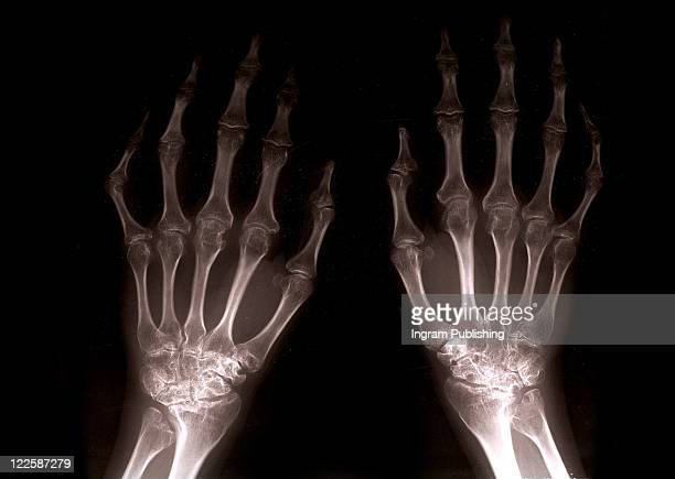 close up of xray hands with black background backlight