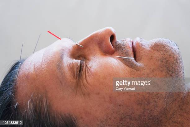 close up portrait of a man having acupuncture on his face - acupuncture stock pictures, royalty-free photos & images