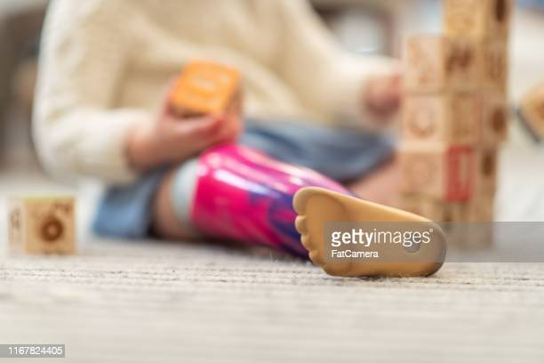 close up shot of a little girl's prosthetic leg - fatcamera stock pictures, royalty-free photos & images