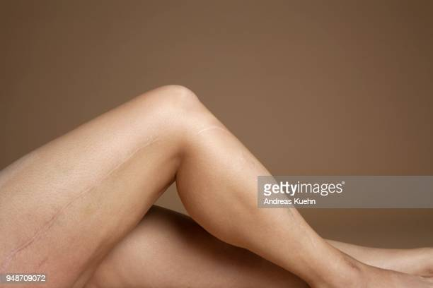 Close up shot of a woman's leg with huge scars along the side.