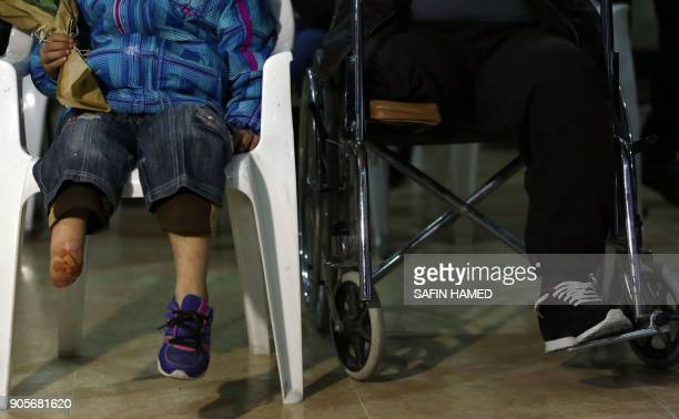 A close up shot shows the legs of Iraqis who lost their limbs in the offensive to retake the city of Mosul from Islamic State fighters as they gather...