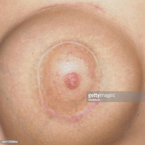 close up view of a nipple after plastic surgery - brustwarze stock-fotos und bilder