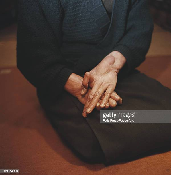 Close up view of the hands of a survivor and victim of the atomic bomb dropped on Hiroshima Japan in August 1945 showing deformed fingers and a tumor...