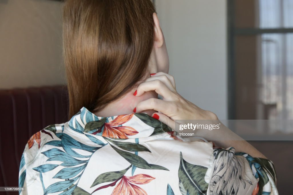 Close up view of woman scratching her neck. : Stock Photo