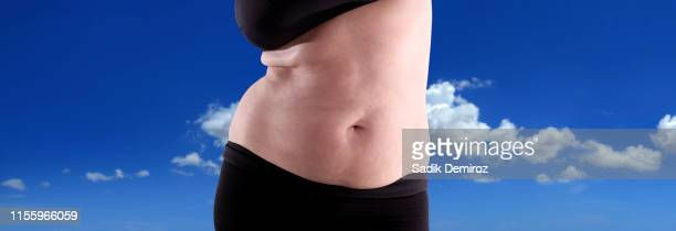 close up woman showing fat section of her belly - abdominoplastia imagens e fotografias de stock
