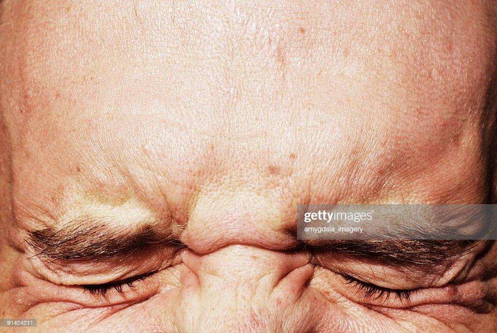 Geschlossen Augen und auf der Stirn Augen zukneifen : Stock-Foto