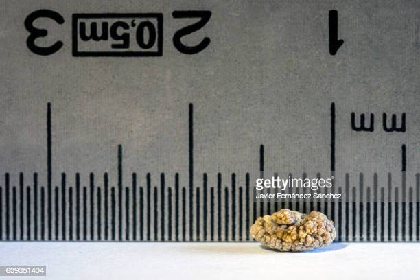 close-up detail of a kidney stone due to nephritic colic, with a ruler from behind to measure its size. - urethra stock pictures, royalty-free photos & images
