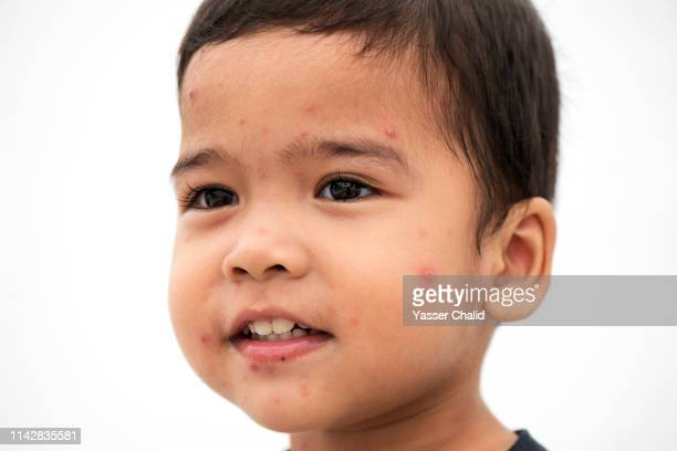 closeup kid with measles - catapora imagens e fotografias de stock