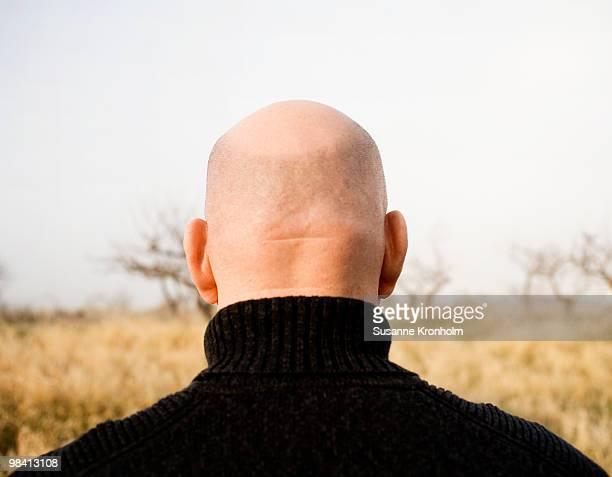 Close-up of a bald head Sweden.