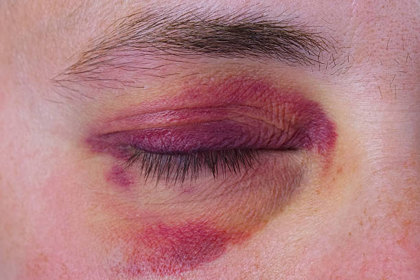 free black eye images pictures and royalty free stock photos