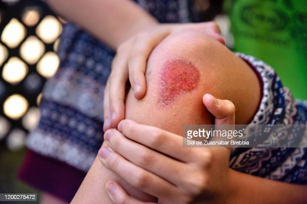 close-up of a large erosive wound on a girl's knee - real body fotografías e imágenes de stock