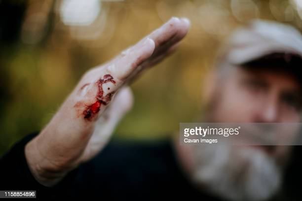 a closeup of a man with a bloody cut on his hand, starting to scab. - skin scab stock photos and pictures
