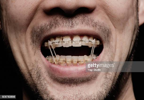 close-up of a man's mouth, orthodontics - brace stock pictures, royalty-free photos & images