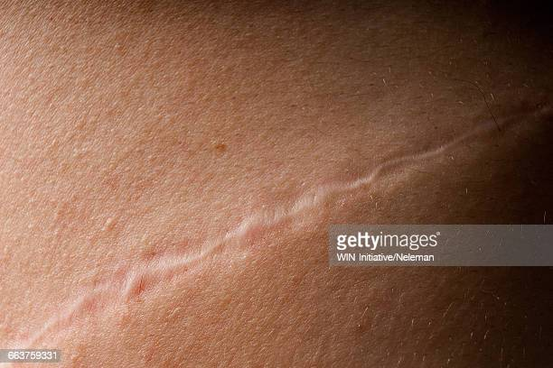 Close-up of a scar on a persons skin