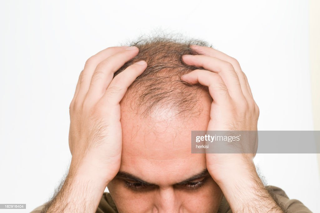 Close-up of a the top of a man's balding head and his hands : Stock Photo