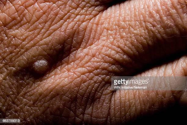 close-up of a wart on a persons hand - warzen stock-fotos und bilder