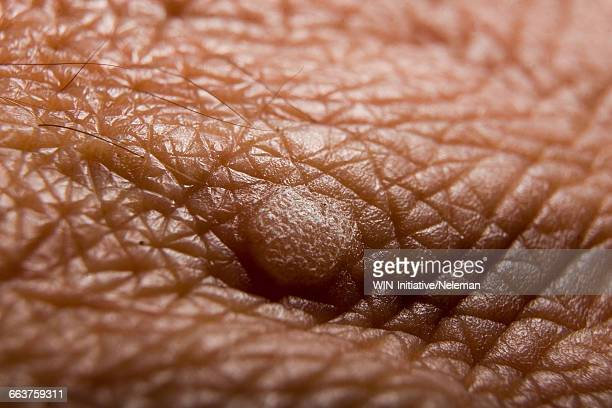 close-up of a wart on a persons skin - wart stock photos and pictures